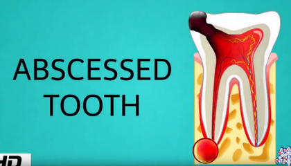 muxetv medical centre Abscessed tooth