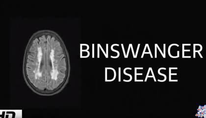 muxetv medical centre Binswanger disease