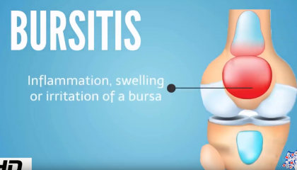 muxetv medical centre Bursitis
